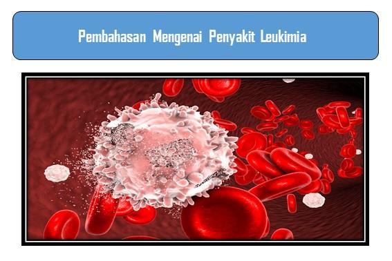 Pembahasan Mengenai Penyakit Leukimia